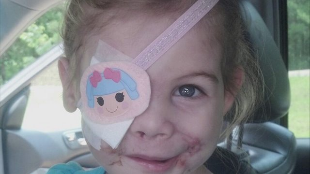 Girl attacked by pitbulls scheduled to get a new eye