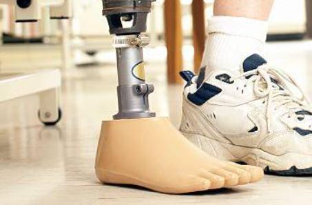 Getty Image of Prosthetic Leg